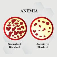 Anemia amount of red blood Iron deficiency anemia difference of Anemia amount of red blood cell and normal symptoms vector illustration medical.
