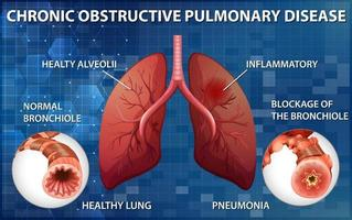 Lung with chronic obstructive pulmonary disease vector