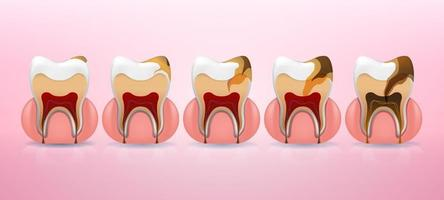 Tooth caries structure and full placement steps in realistic style. Stain, enamel caries, dentil, pulpitis, periodontitis. Vector illustration 3d.