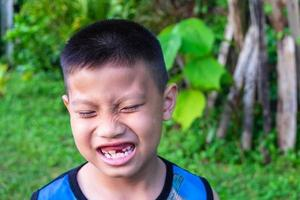 Boy smiling with missing tooth