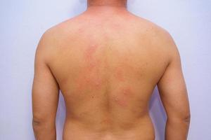 Male adult with acute onset food allergy with hives on entire body