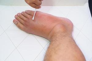 Close-up of an old man's wounded right foot