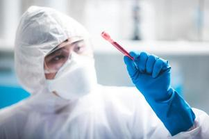 Researcher holding a blood sample