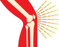 knee joint bones vector