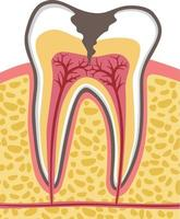 tooth cross section with dental caries vector