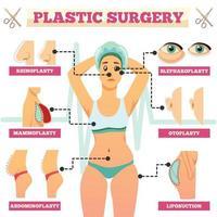 Ilustración de vector de diagrama de flujo ortogonal de cirugía plástica
