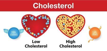 colesterol en las arterias y riesgo para la salud vector