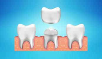 Dental Crown Restoration in realistic style vector