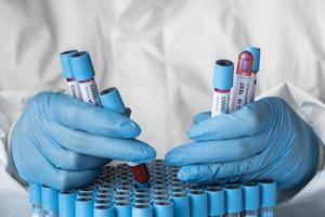 Hand with protective gloves holding blood samples for covid test photo