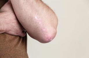Psoriasis on the elbow photo