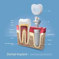 Ilustración de vector de dientes humanos e implantes dentales