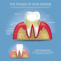 Human teeth Stages of Gum Disease Vector Illustration