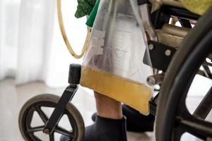 Señora asiática paciente mujer sentada en silla de ruedas con bolsa de orina en la sala del hospital foto