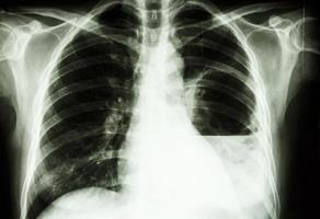 lung abscess  film chest xray PA upright show left lung abscess photo