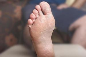 Foot psoriazis medical photo