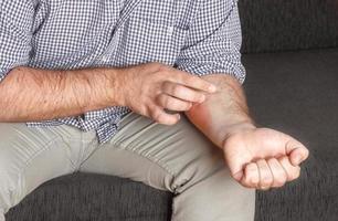 Eczema on hand photo