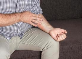 Eczema shown on arm photo