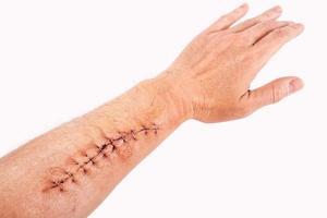 Reparación de heridas quirúrgicas con grapa en el brazo aislado sobre fondo blanco. foto