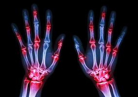 film x ray both human s hands and arthritis at multiple joint   Gout  Rheumatoid photo