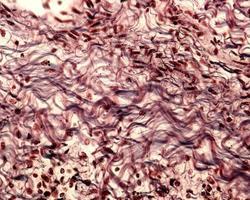 Collagen fibers Connective tissue photo