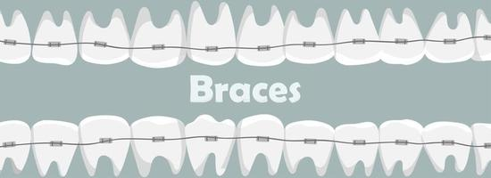 Banner with teeth with braces vector