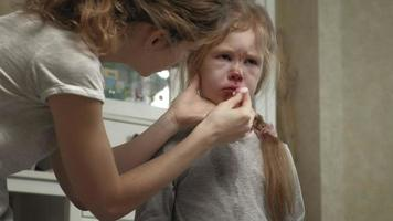 Mom provides first aid to a child with a bloody nose video