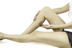 Big bruised on the woman leg isolated in clipping path photo