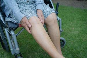 anciana asiática mayor o anciana mujer paciente mostrar sus cicatrices quirúrgico reemplazo total de la articulación de la rodilla sutura herida cirugía artroplastia en la cama en enfermería sala de hospital saludable concepto médico fuerte foto