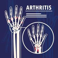 arthritis bones hands vector