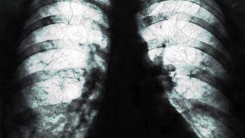radiographies des poumons humains ou physiothérapie pour les médecins ayant des problèmes pulmonaires tels que des virus entrant dans les poumons video