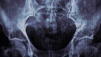 Human pelvic Xray or medical research video