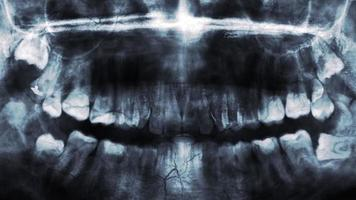 raio x de dentes humanos ou pesquisa em saúde bucal video