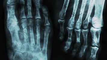 raio x do osso do pé humano ou pesquisa médica video