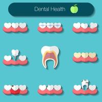 Dental care flat design Vector illustration of heathy theeth, caries, braces system, implantation, and other dental health icons set