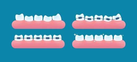 Alignment of teeth and bite correction with the help of braces system vector
