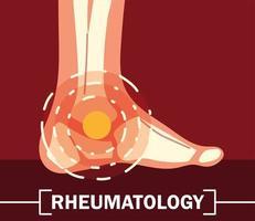 rheumatology ankle bones vector