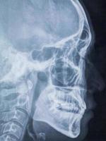Panoramic dental X-Ray photo