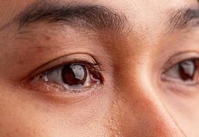 Cerca de una mujer asiática llorando con lágrimas y pequeñas pecas en su hermoso rostro. foto