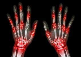 Radiografía de película de manos humanas y artritis en gota articular múltiple, reumatoide foto