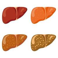Stages liver damage set vector