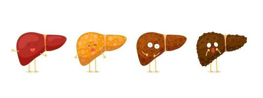 Stages human liver character damage concept set. Healthy liver steatosis fatty NASH fibrosis and cirrhosis. Vector cartoon medical reversible and irreversible mascot condition illustration