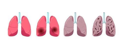 Lung diseases progression set. Healthy inflammation pneumonia and tuberculosis viral infection. Human respiratory system internal organ virus struck. Medical anatomy damage vector eps illusrtation