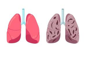 pulmones sanos y no saludables comparan el concepto. Inflamación fuerte del órgano interno del sistema respiratorio humano y de la neumonía. Ilustración de vector de anatomía de condición médica de respiración de atención médica