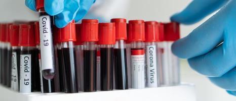 tubos de ensayo de investigación relacionada con covid-19 foto