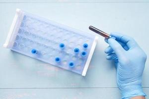 hand in blue medical gloves holding blood test tube photo