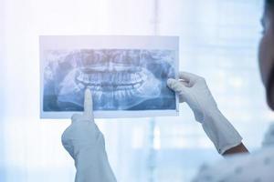 Female dentist holding a dental X-Ray photo