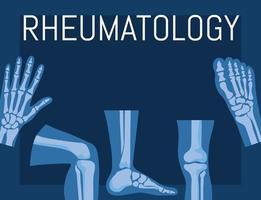 rheumatology bones poster vector