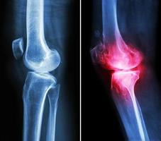 rodilla normal y rodilla con osteoartritis foto