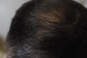 Hair loss, man scalp, baldness closeup photo
