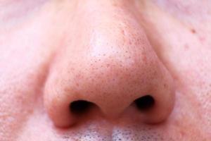 Cerrar la nariz en la piel y el concepto de cuidado de la piel y soluciones completas para la piel Tratamiento de poros grandes y puntos negros foto